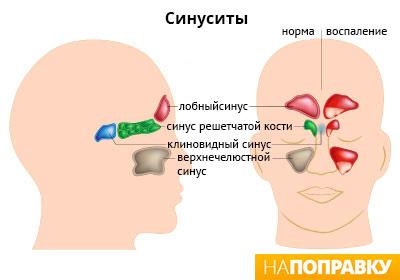 Нежить і закладеність носа на нервовому грунті: причини і лікування