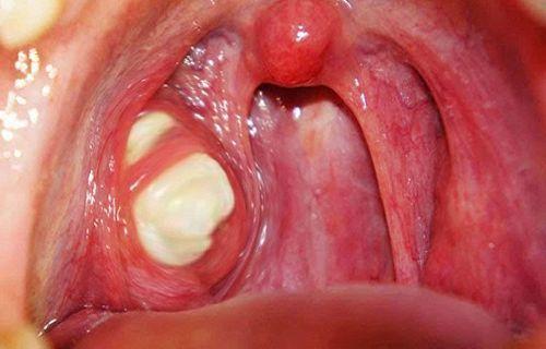 Гнійна ангіна у дітей: симптоми і лікування в домашніх умовах