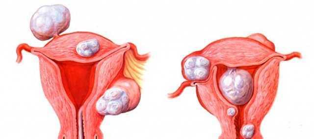 Причини відсутності зростання ендометрія