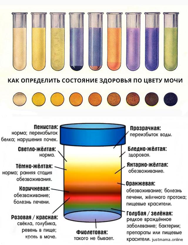 Колір сечі при вагітності