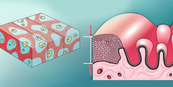 Що таке атрофія ендометрію