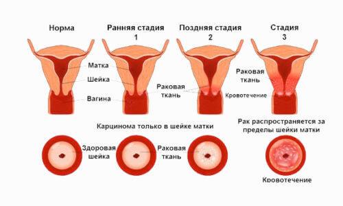 Ознаки та симптоми раку матки