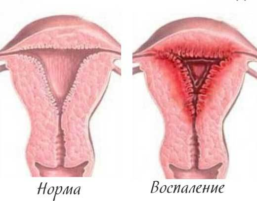 Хронічне запалення матки