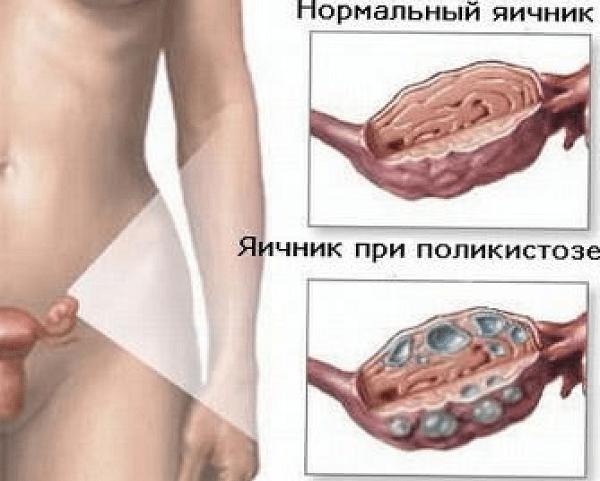 Резекція яєчника: що це таке, відновлення і наслідки, відгуки