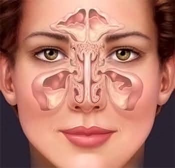 Ексудативний гайморит (синусит): форми, симптоми і лікування