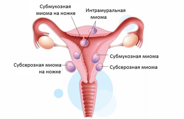 Що таке інтрамуральна міома матки