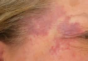 Гемангіома на шиї у дитини і дорослого: види, причини і лікування