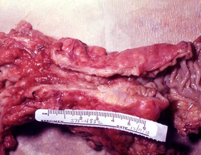 муцинозних аденокарцинома