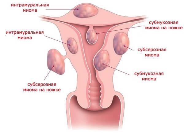 Міома матки на задній стінці матки