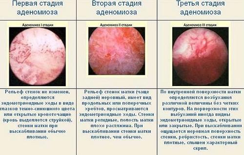 Чим небезпечний ендометріоз
