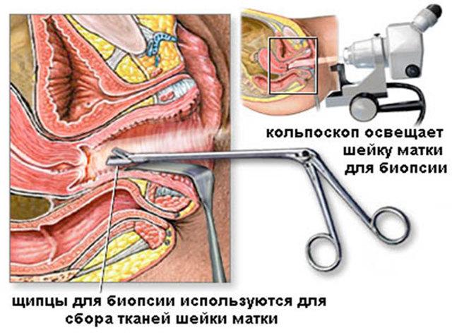 Що таке кольпоскопія шийки матки