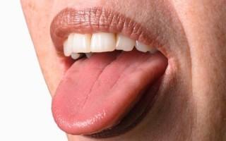 Болить горло і язик: причини, симптоми, лікування і профілактика