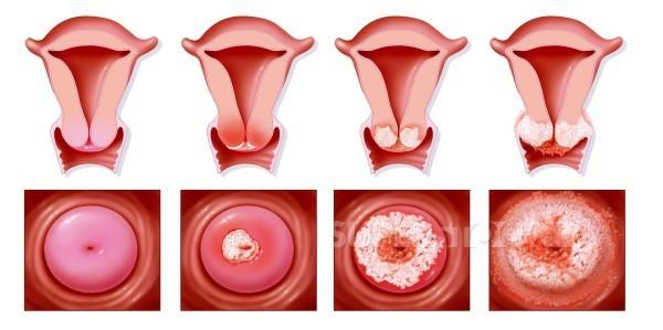 Причини раку матки