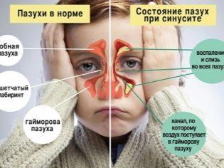 Носова кровотеча: психосоматика, причини виникнення та методи лікування