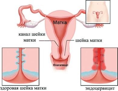 Ерозія і цервіцит у жінок