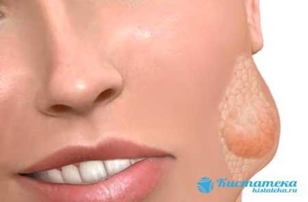 Кіста слинної залози: симптоми і лікування, профілактика