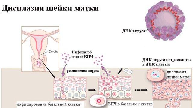 Радиоволновая ексцизія шийки матки: наслідки та післяопераційний період