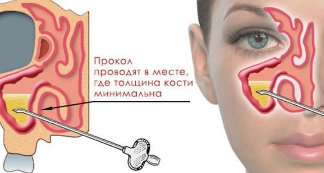 Двосторонній синусит: що це таке, симптоми і лікування