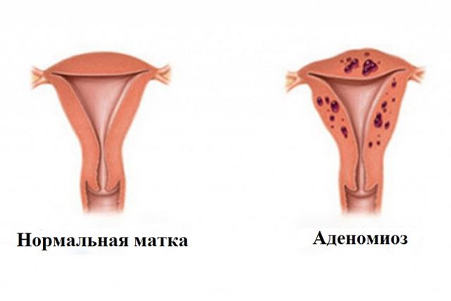 Вогнищевий аденоміоз матки