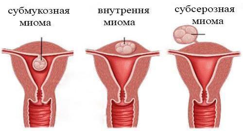 Радонові ванни при міомі матки