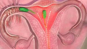 Шийка матки і цервікальний канал