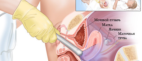 Рак шийки матки 4 стадії