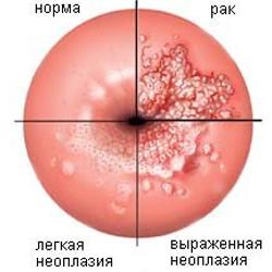 Радиоволновая деструкція шийки матки