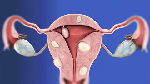 Ознаки та симптоми міоми матки