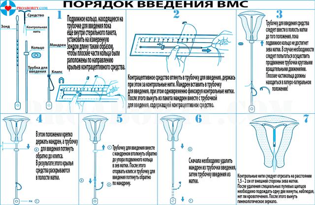 Спіраль Голдлілі Ексклюзив: інструкція, відгуки, ціна