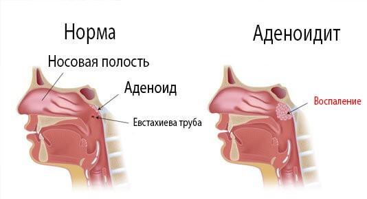 Прогрівання носа при нежиті: чи можна, як і чим краще