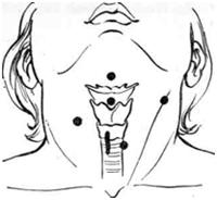 Операції при вроджених свищах і кістах шиї: опис і види