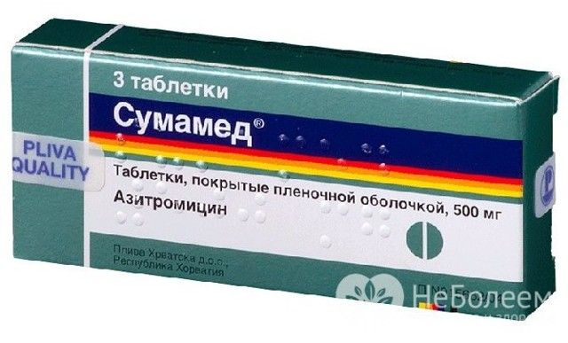 Лікування ларингіту у дорослих препаратами, таблетками та антибіотиками