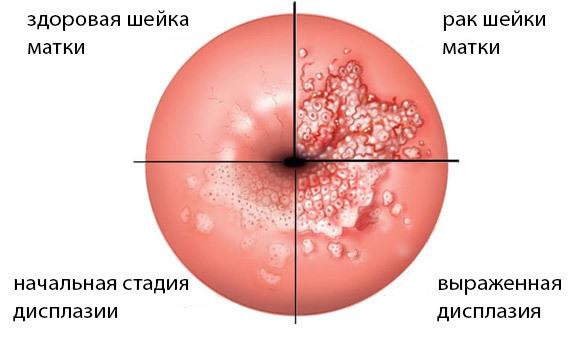 Післяопераційний період після конізації шийки матки