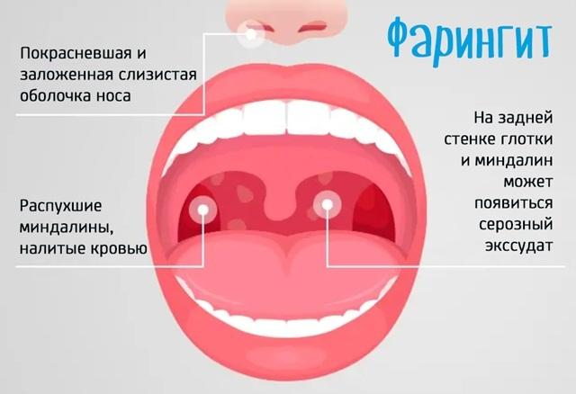 Чим полоскати горло при фарингіті в домашніх умовах?