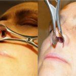 Перфорація носової перегородки: симптоми і лікування з операцією і без