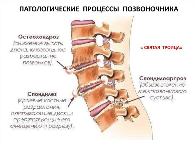 Чому при місячних болить поперек: причини болю в спині, що робити
