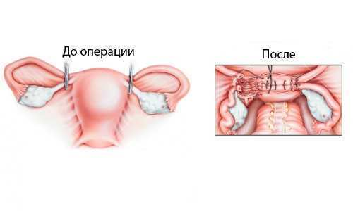 Скільки триває операція з видалення матки