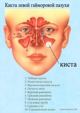 Кіста в носовій пазусі: симптоми і лікування, операція, наслідки