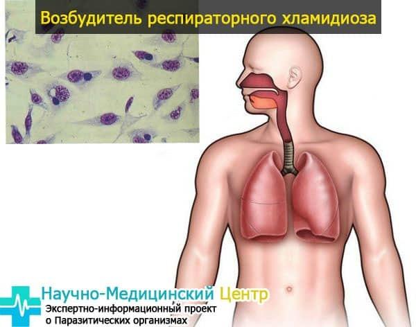 Хламідії у чоловіків і жінок: причини виникнення захворювання