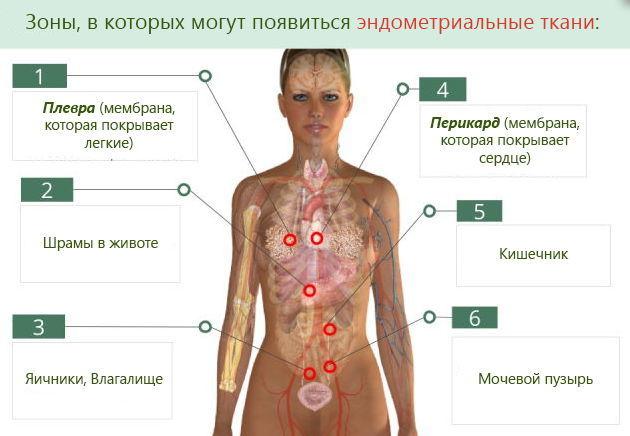 причини ендометріозу