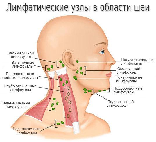 Тонзіллярние лімфовузли збільшені: причини, симптоми і чим лікувати