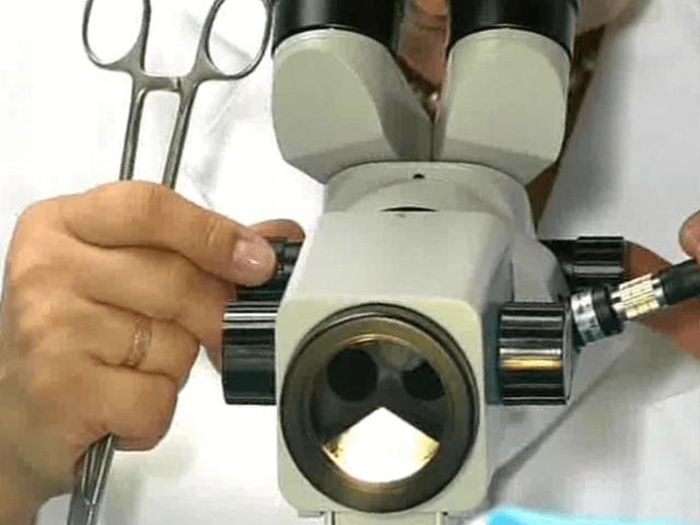 Що таке розширена кольпоскопія шийки матки