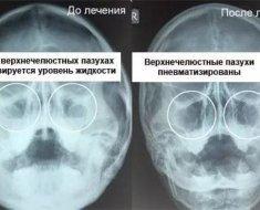 Гайморит на знімку: як виглядає рентген пазух носа