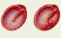 Аероотіт: причини, симптоми, лікування і профілактика