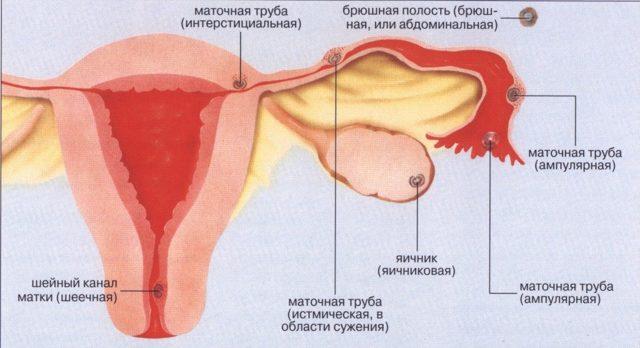 Що таке маткова кровотеча