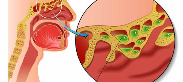 Гайморит, синусит і фронтит при вагітності: симптоми і лікування