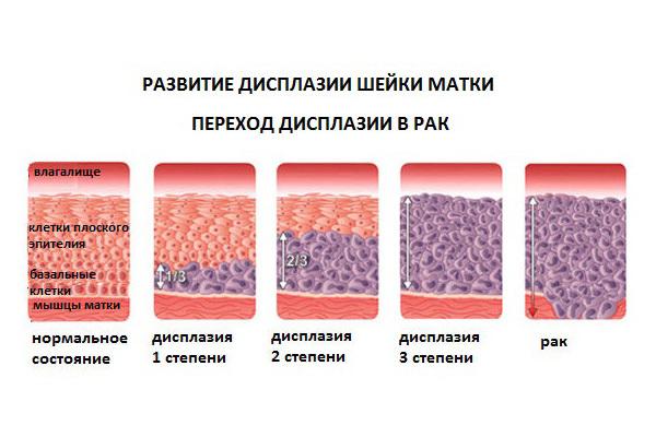 Лікування дисплазії шийки матки народними методами