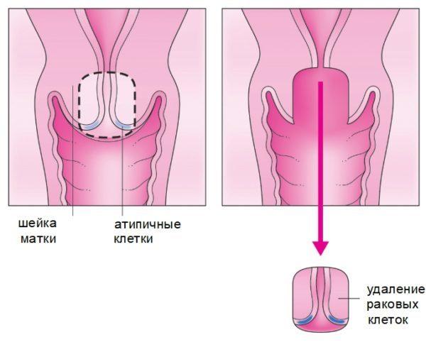 Що таке трахелектомія