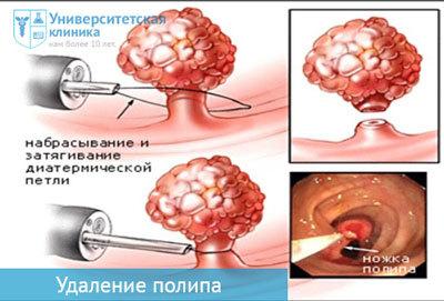 поліпоз ендометрія