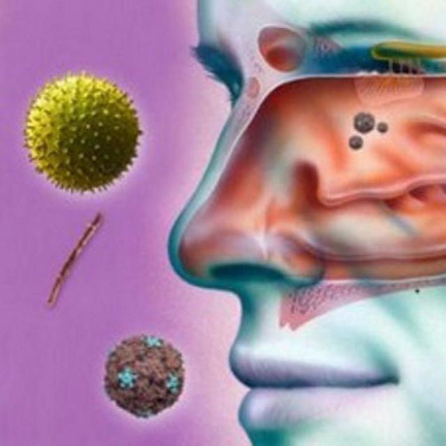 Гіпертрофічний риніт і його форми: симптоми і лікування